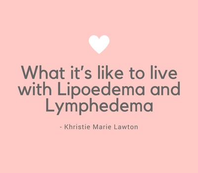 What it's like to live with Lipoedema and Lymphedema